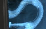 Na rentgenu je háček jasně patrný